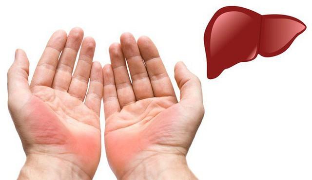 7 biểu hiện ở đôi tay tiết lộ các bệnh mà cơ thể đang mắc, dấu hiệu đầu tiên cảnh báo bạn đang bị bệnh gan đấy - Ảnh 1.