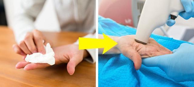 7 biểu hiện ở đôi tay tiết lộ các bệnh mà cơ thể đang mắc, dấu hiệu đầu tiên cảnh báo bạn đang bị bệnh gan đấy - Ảnh 2.