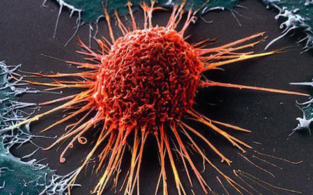 Thiếu vitamin này, cơ thể dễ bị ung thư hơn: Nguồn cung sẵn trong tự nhiên, hãy tận dụng