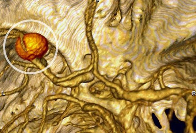 5 bệnh gây ra cái chết bất thình lình trong lúc ngủ: Phải chữa trị ngay, phòng bất trắc - Ảnh 2.