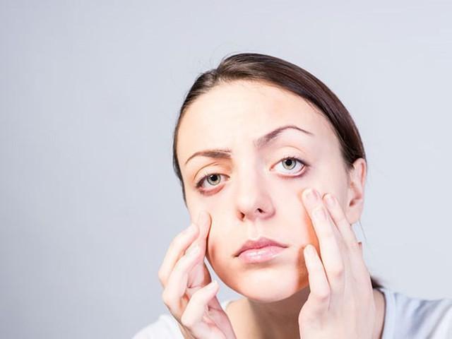 7 lý do gây nên tình trạng chảy nước mắt không thể tự kiềm chế - Ảnh 4.