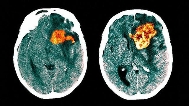 Tưởng đau đầu do thiếu sắt, 3 tháng sau cô gái qua đời vì bị ung thư não nguy hiểm: Đừng bỏ qua những triệu chứng dễ nhầm lẫn này - Ảnh 4.