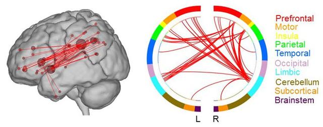 Nghiên cứu mới cho thấy tại sao một số người sáng tạo hơn những người khác - Ảnh 1.