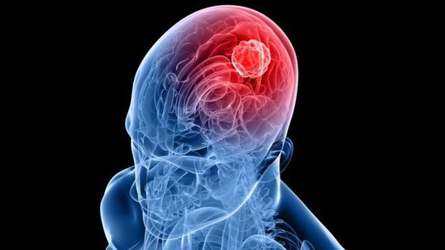 Reovirus có thể nhắm mục tiêu tới khối u trong não, đồng thời kích thích hệ miễn dịch tấn công nó.