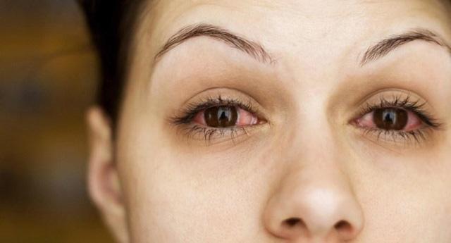 Nguy cơ bị mù dụi mắt thường xuyên: Hàng triệu vi khuẩn từ tay có thể khiến mắt bạn ngứa điên đảo - Ảnh 1.