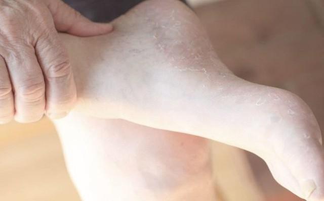 Bàn chân và những dấu hiệu cảnh báo bệnh tật - Ảnh 1.