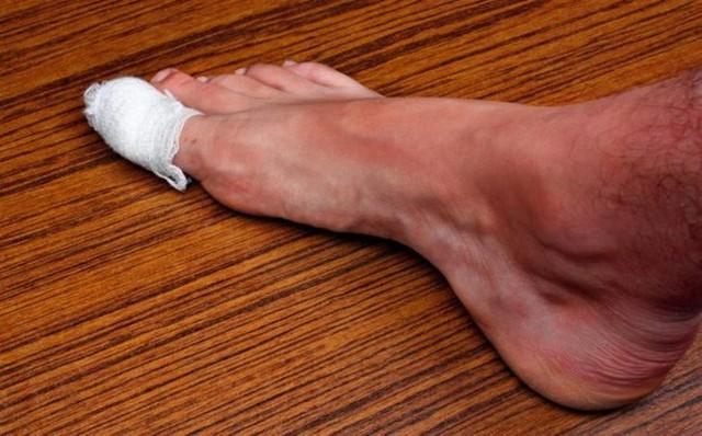 Bàn chân và những dấu hiệu cảnh báo bệnh tật - Ảnh 4.