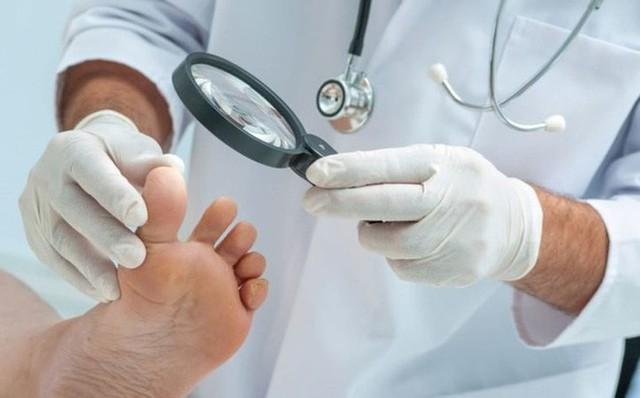 Bàn chân và những dấu hiệu cảnh báo bệnh tật - Ảnh 5.