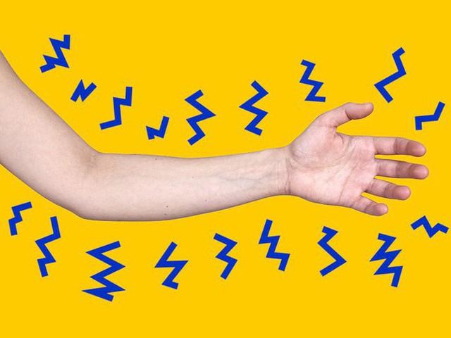 Tê tay như bị kim châm khi ngủ dậy, nguyên nhân là gì và khi nào thì nguy hiểm? - Ảnh 1.
