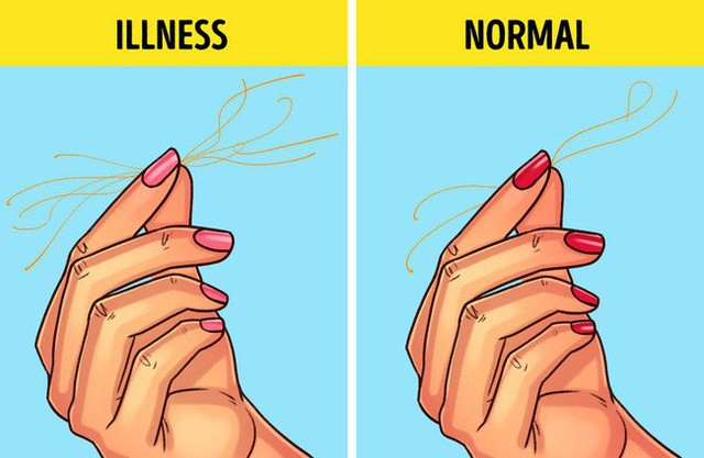 Bài kiểm tra sức khỏe đơn giản bạn có thể tự làm tại nhà để biết mình có bị 9 bệnh này hay không - Ảnh 4.