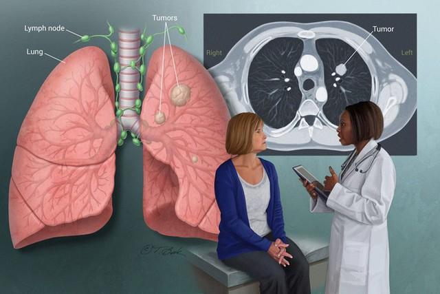 4 việc quan trọng phải làm để ngăn ung thư phổi: Tiếc rằng nhiều người biết quá muộn - Ảnh 3.
