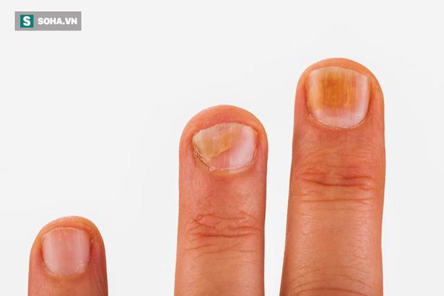 Móng tay xuất hiện dấu hiệu này, bạn có thể bị bệnh tiểu đường hoặc bệnh về máu - Ảnh 1.
