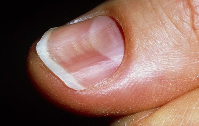 Móng tay xuất hiện dấu hiệu này, bạn có thể bị bệnh tiểu đường hoặc bệnh về máu - Ảnh 2.
