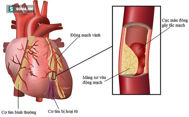 Người đang duy trì 3 thói quen này, hãy cảnh giác vì bệnh mỡ máu cao đang chờ trước cửa - Ảnh 1.