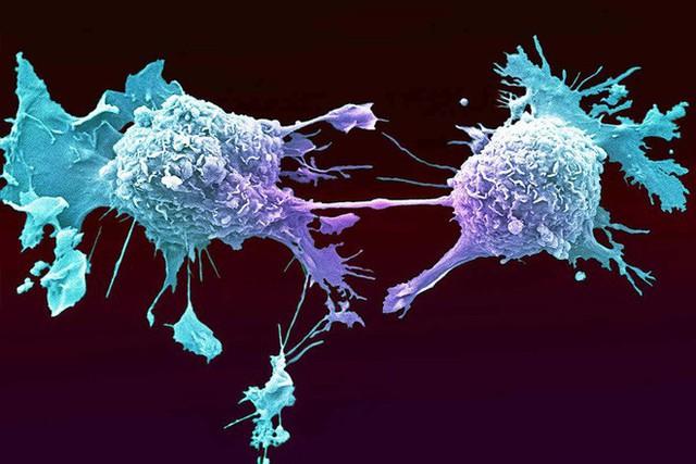 Cải thiện hệ miễn dịch là thuốc chống ung thư tốt nhất: Cơ thể sẽ tự tiêu diệt tế bào xấu - Ảnh 2.