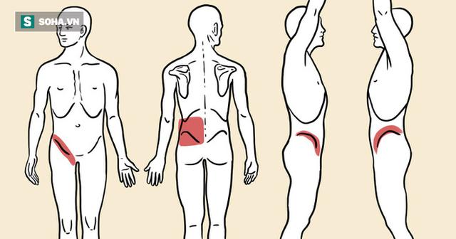 5 dấu hiệu thận của bạn kêu cứu vì có sỏi: Đừng để sỏi tăng kích thước sẽ rất phức tạp - Ảnh 1.