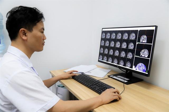 Chuyên gia bệnh viện K Trung ương chỉ ra 8 bất thường có thể là dấu hiệu của u não - Ảnh 1.