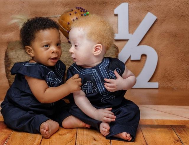 Cặp sinh đôi chào đời cách nhau vài phút nhưng khiến bác sĩ cũng sốc, cả bệnh viện kéo đến chụp ảnh - Ảnh 4.
