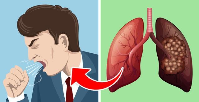5 dấu hiệu tưởng đơn giản nhưng báo hiệu phổi đang tổn thương nghiêm trọng: Nếu phát hiện sớm có thể cứu mạng nhiều người - Ảnh 2.