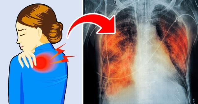 5 dấu hiệu tưởng đơn giản nhưng báo hiệu phổi đang tổn thương nghiêm trọng: Nếu phát hiện sớm có thể cứu mạng nhiều người - Ảnh 1.