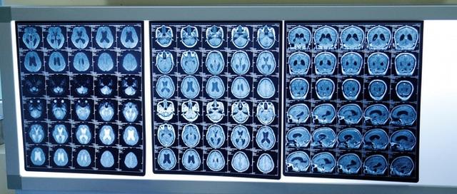 Mẹ ung thư di căn não, hôn mê, mất trí nhớ vẫn quyết tâm sinh con: Điều kỳ diệu đã đến! - Ảnh 1.