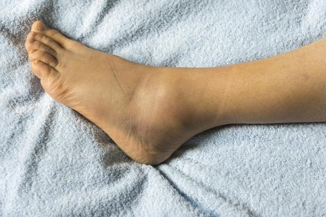 Hãy cẩn thận với 6 dấu hiệu ở bàn chân nếu không muốn nhập viện cấp cứu - Ảnh 1.