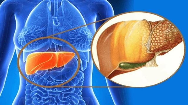 Có 3 triệu chứng này xuất hiện trên bàn tay chứng tỏ gan của bạn đang kêu cứu - Ảnh 2.