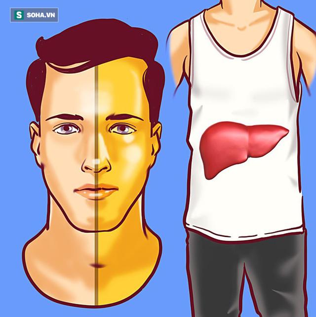 8 dấu hiệu cảnh báo bệnh gan: Nếu có triệu chứng là bạn cần đến bác sĩ càng sớm càng tốt - Ảnh 1.