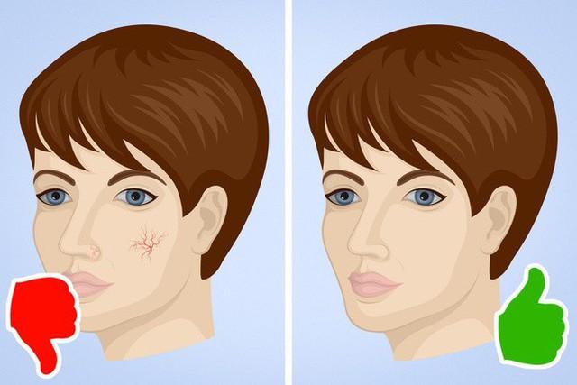 8 dấu hiệu cảnh báo bệnh gan: Nếu có triệu chứng là bạn cần đến bác sĩ càng sớm càng tốt - Ảnh 5.