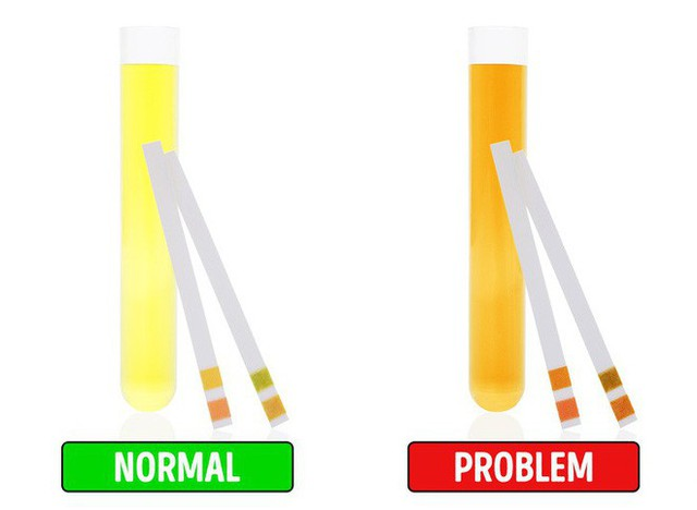 8 dấu hiệu cảnh báo bệnh gan: Nếu có triệu chứng là bạn cần đến bác sĩ càng sớm càng tốt - Ảnh 7.