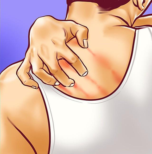 8 dấu hiệu cảnh báo bệnh gan: Nếu có triệu chứng là bạn cần đến bác sĩ càng sớm càng tốt - Ảnh 8.