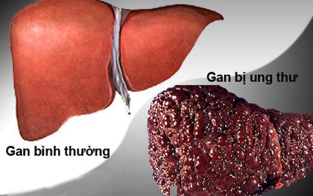 Ung thư gan đứng đầu trong các bệnh ung thư ở VN: GĐ BV Ung bướu chỉ 5 dấu hiệu cảnh báo - Ảnh 1.