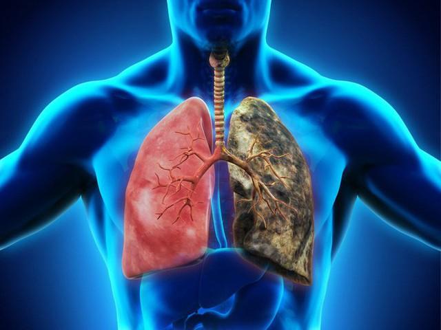 Đau lưng có phải là triệu chứng sớm của ung thư phổi: Bác sĩ chỉ cách nhận biết quan trọng - Ảnh 2.