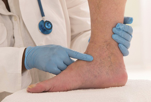 Dấu hiệu thay đổi trên da cho thấy bạn đã bị bệnh gan: Nếu trùng khớp thì nên đi khám ngay - Ảnh 2.