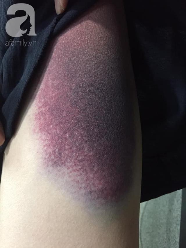 Bệnh nhân bị chấn thương ở háng, rách cơ vì tập yoga theo tư thế này: Lời cảnh báo không thừa từ bác sĩ - Ảnh 1.