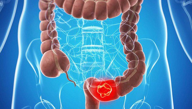 Các triệu chứng ung thư đại trực tràng rất dễ bị bỏ qua - Ảnh 2.