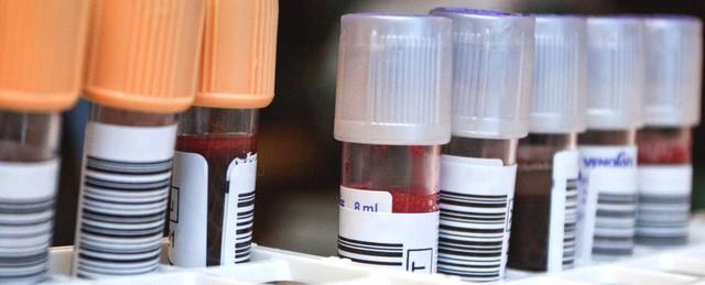 Đã có bệnh nhân HIV thứ 2 trong lịch sử được chữa khỏi, mở ra kỷ nguyên mới cho y học hiện đại - Ảnh 2.