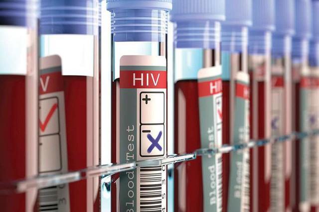 Xuất hiện bệnh nhân thứ 3 trên thế giới được chữa khỏi HIV - Ảnh 1.