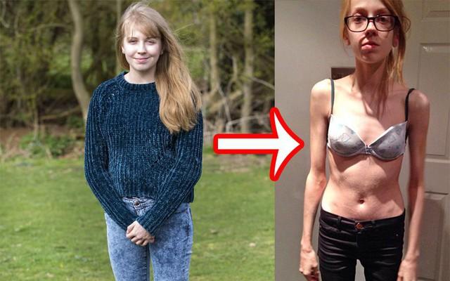Hiệp hội Ung thư Hoa Kỳ cảnh báo: Nữ giới có nguy cơ mắc bệnh ung thư dạ dày cao nếu gặp phải những triệu chứng sau - Ảnh 3.