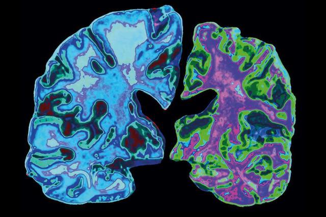 Giới trẻ tăng nguy cơ mắc bệnh Alzheimer chỉ vì 6 thói quen hầu như ai cũng mắc phải - Ảnh 2.