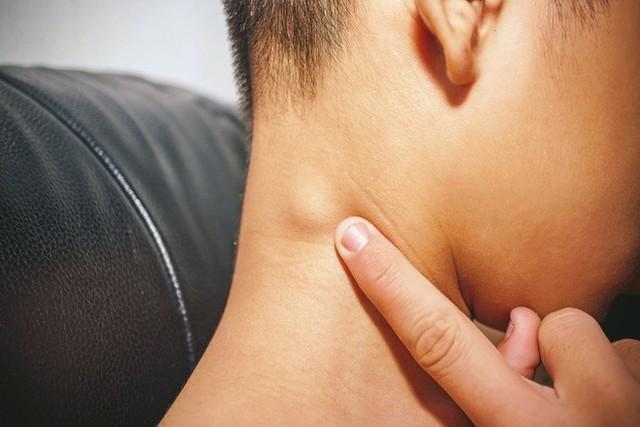 7 triệu chứng không đau có thể là dấu hiệu sớm của ung thư: Khám sớm có thể cứu sống bạn - Ảnh 6.