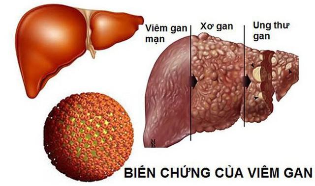 Bệnh gan rất nguy hiểm vì gây tử vong sớm: Chuyên gia ung thư gan chỉ cách phòng ngừa đúng - Ảnh 1.