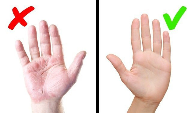 Cẩn thận với những bệnh nguy hiểm được thông báo qua dấu hiệu bất thường trên làn da - Ảnh 5.