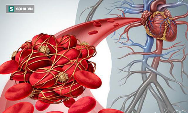 5 triệu chứng ngầm cảnh báo về bệnh huyết khối: Hậu quả nặng nề có thể bạn chưa biết - Ảnh 1.