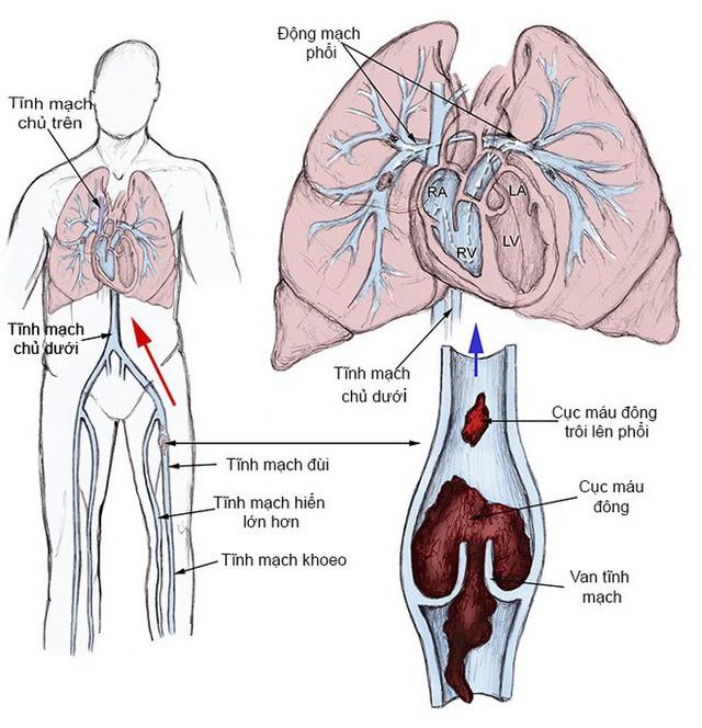 5 triệu chứng ngầm cảnh báo về bệnh huyết khối: Hậu quả nặng nề có thể bạn chưa biết - Ảnh 3.
