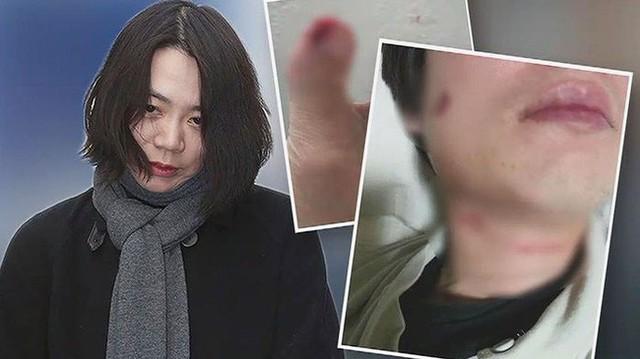 Korean Air: Gia tộc tai tiếng gắn liền với loạt bê bối bạo hành, lạm quyền và ức hiếp kẻ yếu gây rúng động Hàn Quốc - Ảnh 7.