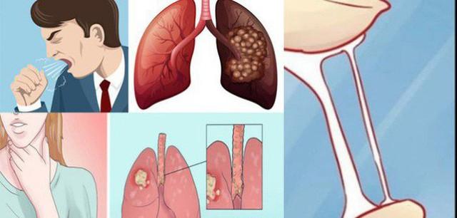 Chỉ sau 1 năm chống chọi với ung thư phổi, nghệ sĩ Lê Bình qua đời: Đừng bỏ qua các dấu hiệu cảnh báo bệnh sớm - Ảnh 3.