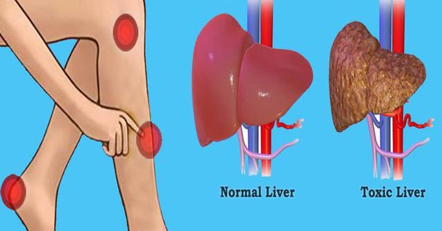 Người làm tốt 5 việc này ít khi mắc bệnh gan: Thải độc, tăng khí huyết, ngừa bệnh hiệu quả - Ảnh 1.