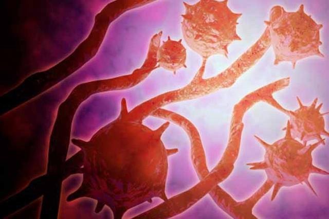Một số dấu hiệu ung thư máu bạn nên biết - Ảnh 5.