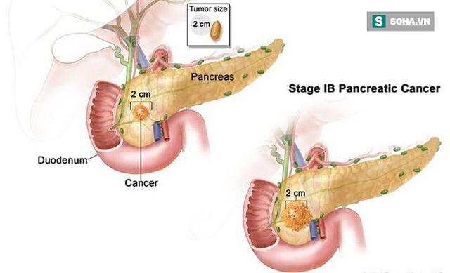 3 dấu hiệu ung thư tuyến tụy giúp phát hiện sớm hơn: Khám muộn thường không thể cứu - Ảnh 1.